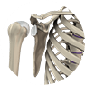 Shoulder Instability Procedure