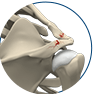 Treatment of Shoulder Fractures
